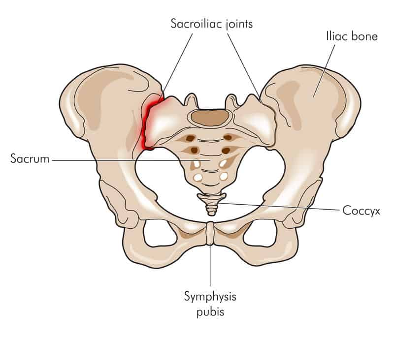 Sacroiliac joint pain and SI joint pain relief