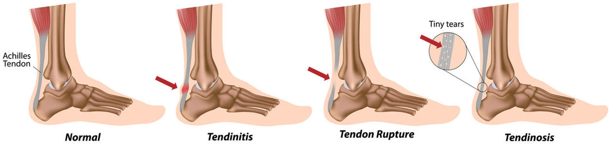 Achilles tendon pain and Achilles tendon rupture