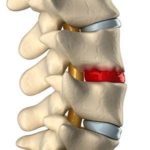 Degenerative disc disease and disk degeneration
