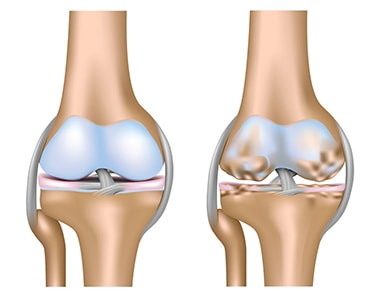 Knee osteoarthritis and joint pain illustration