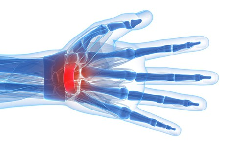 Wrist pain and Carpal Tunnel treatment